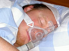 sleep apnea cpap