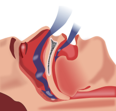 sleep apnea pic