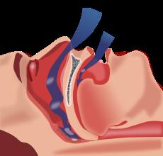 sleep apnea pic