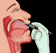 sleep apnea surgery